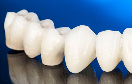 Restorative dentistry crowns