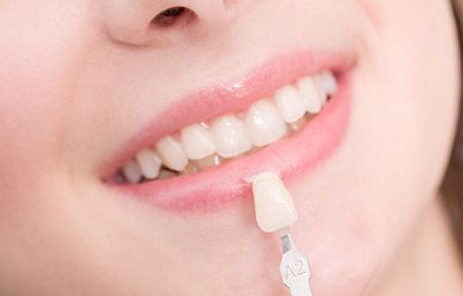Cosmetic dentistry porcelain veneers